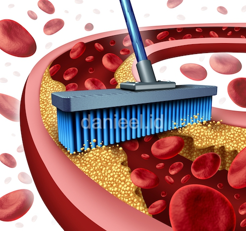 Keep your blood vessels clean